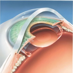 chirurgie-cataracte-implant-multifocal-acrysof